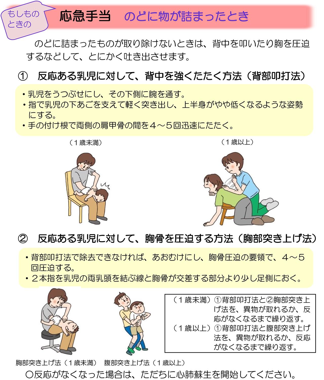 子どもの窒息の応急処置